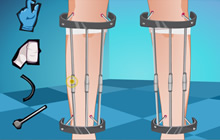 Leg Lengthening Operation